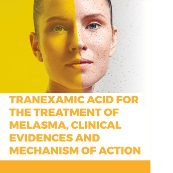 Tranexamic acid for the treatment of melasma. Clinical evidences and Mechanism of action