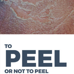 Deep peel: to peel or not to peel