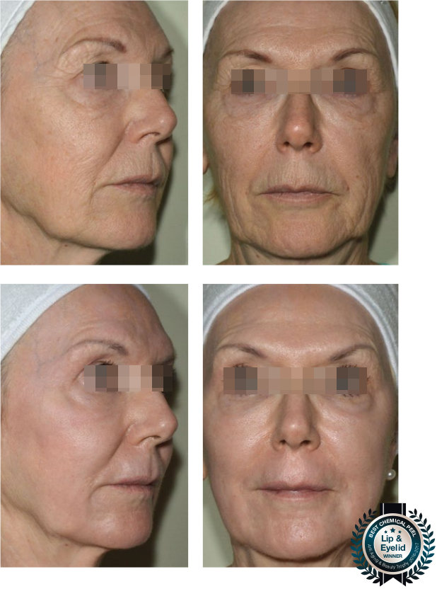LIP & EYELID rejuvenation