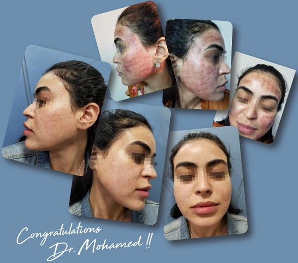 Successful treatment of post inflammatory hyperpigmentation